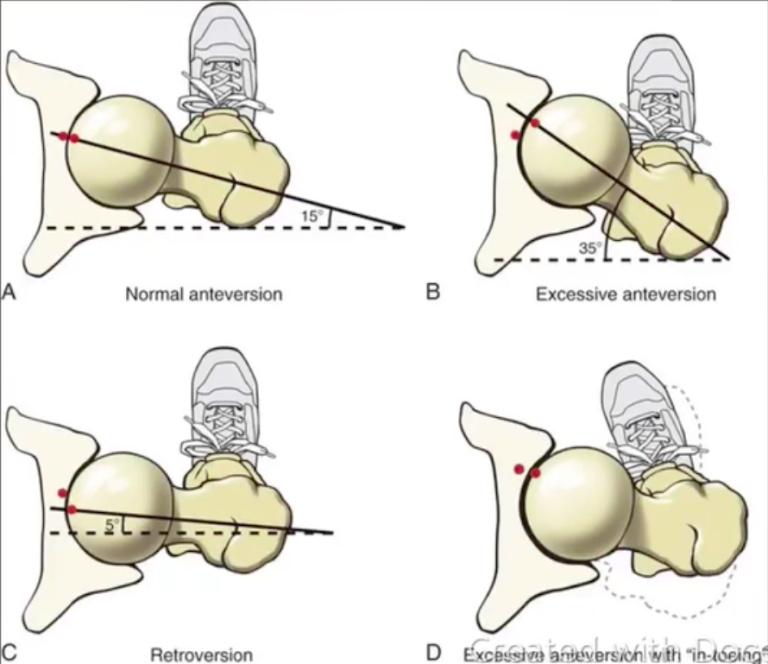 hip pain 1