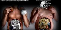 L'obesità è una scelta o una condanna ?- Dr. Spencer Nadolsky